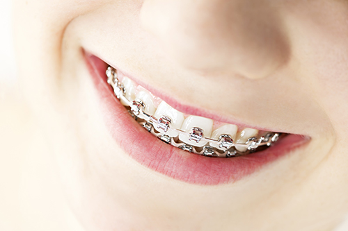 Braces in Hackensack