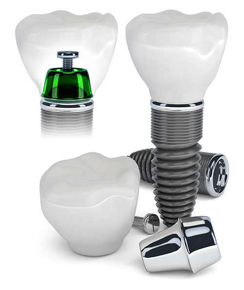 Dental Implants in Fair Lawn