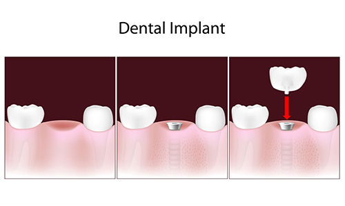 Dental Implants in Hackensack